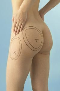 Cirugía de contorno corporal