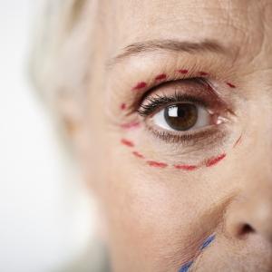 Cirugía del párpado · Blefaroplastia