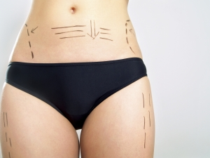 Marked body for cosmetic surgery